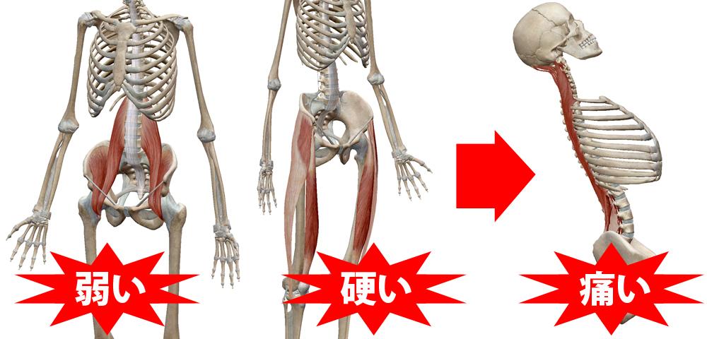 後屈の痛みタイプAの説明