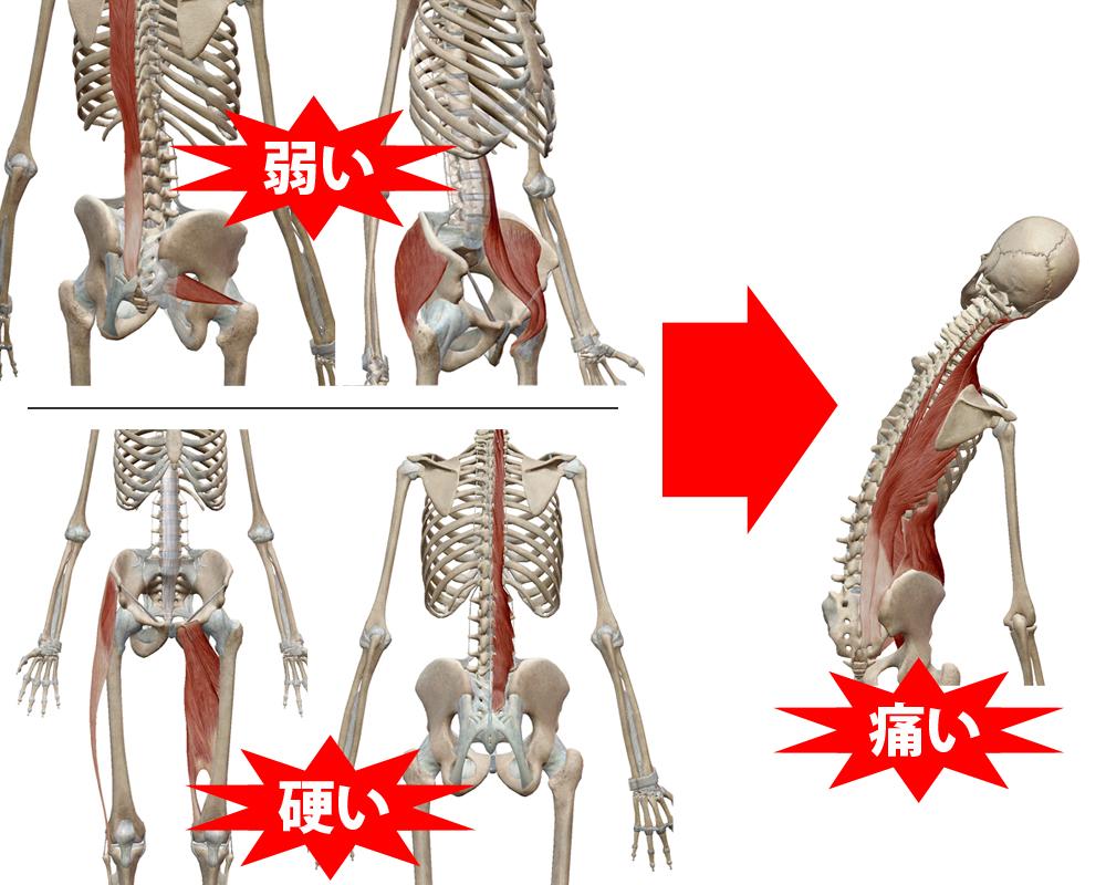 側屈の痛みの説明